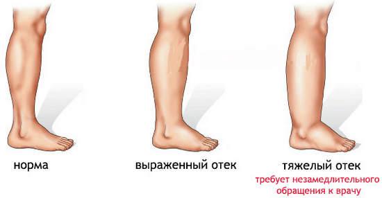 Почему при беременности ноги отекают ноги