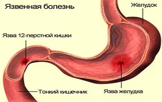 язва 12 перстной кишки лечение