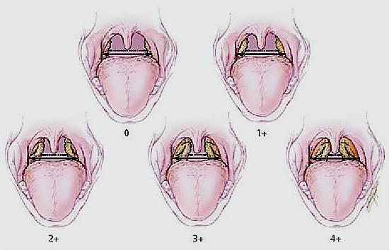таблетки от паразитов в кишечнике
