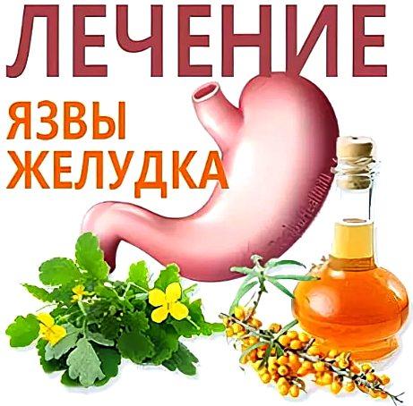 лечение народными средствами язвенной болезни