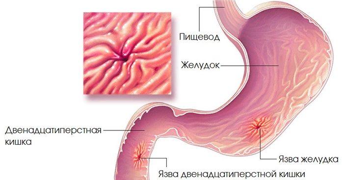 отличия симптомов язвы желудка и 12 перстной кишки