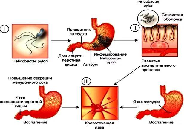 проявления язвенной болезни желудка