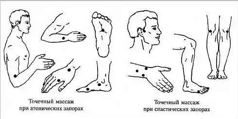точечный массаж при запорах