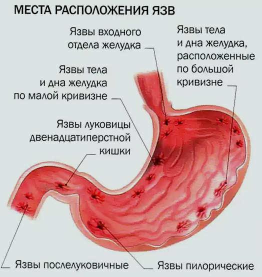 язва желудка, типичные расположения
