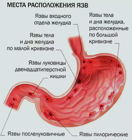 Как лечить язву желудка в домашних условиях мёдом
