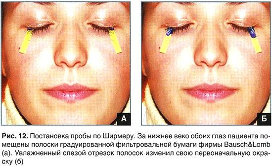 Синдром «сухого глаза»: причины, симптомы и лечение ССГ