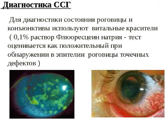диагностика ССГ