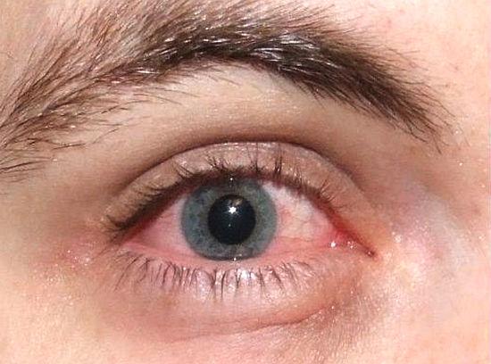 синдром сухого глаза симптомы