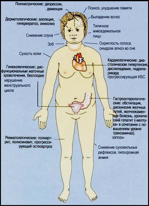 основные симптомы аутоиммунного тиреидита