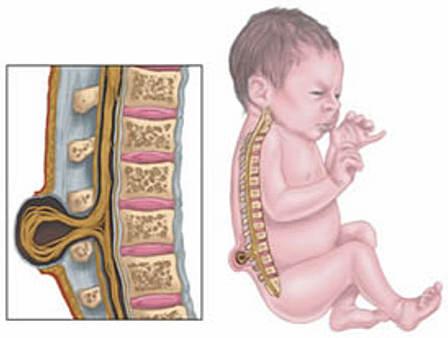 патологии развития при недостатке фолиевой кислоты