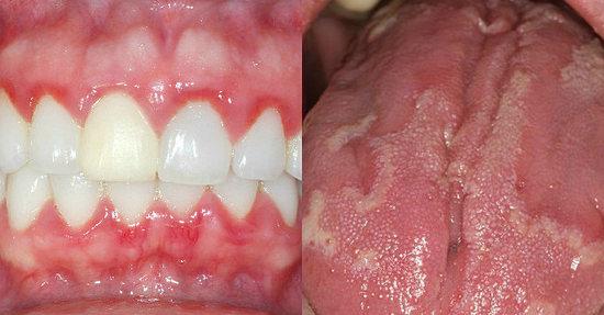 Кандидоз полости рта - причины, симптомы, лечение молочницы