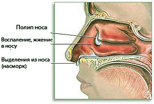 симптомы полипоза