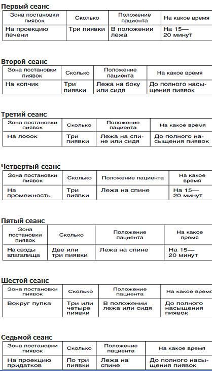 Схема постановки пиявок в гинекологии