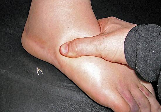 отек ног - почему возникают