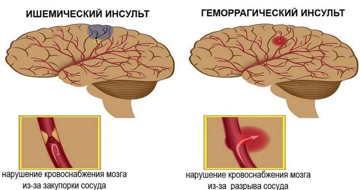 отличие ишемического инсульта от геморрагического