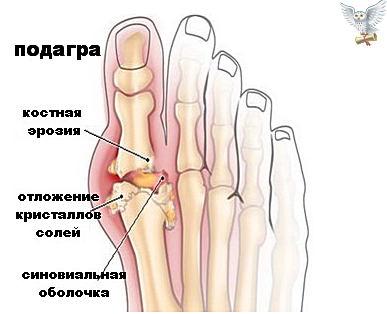 подагра - причины, симптомы