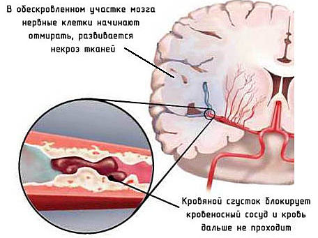 симптомы и последствия микроинсульта