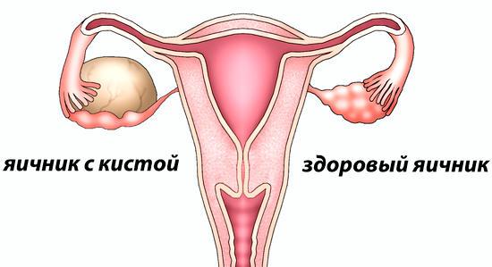 киста яичника - что это, причины, симптомы