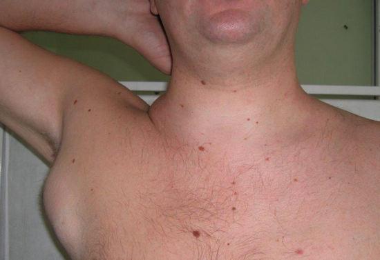симптомы болезни Ходжкина