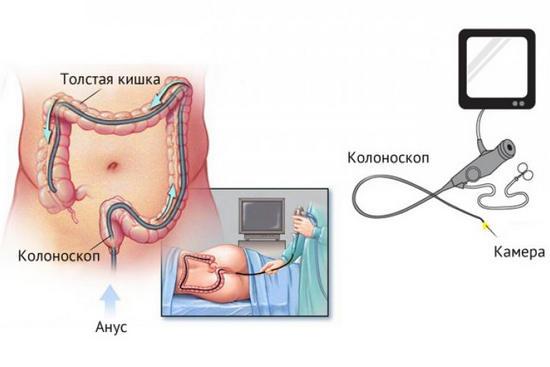 процедура колоноскопии - описание