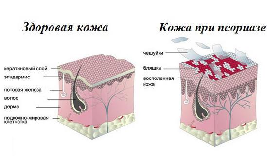 Псориаз: причины, симптомы, лечение в домашних условиях