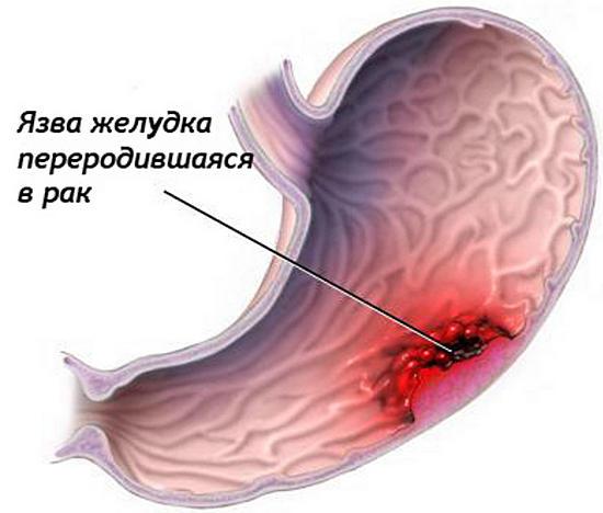 бактерия хеликобактер запах изо рта