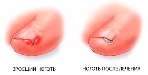 Врастание ногтя на большом пальце ноги лечение