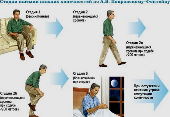 симптомы атеросклероза нижних конечностей