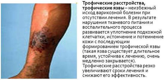 Диабет раны незаживающие на ногах как лечить