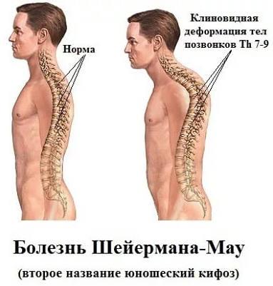 признаки болезни Шейермана-Мау