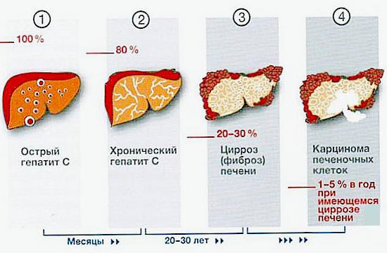 Гепатит С - как передается, симптомы, лечение