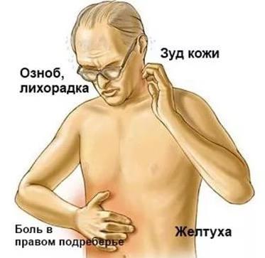 симптомы застоя желчи