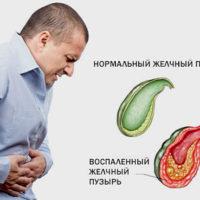 Холецистит — симптомы и лечение, виды, причины, диета стол 5