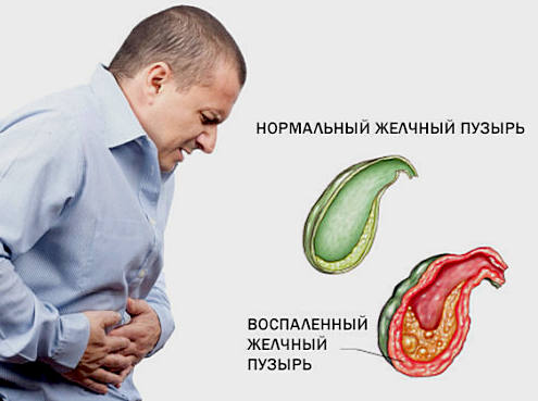 холецистит - симптомы, лечение
