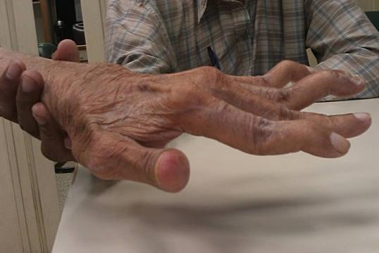 Боли в мышцах при ревматоидном артрите