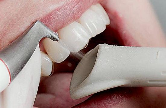 чистка зубов пескоструем