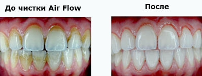 как выглядит результат пескоструйной чистки зубов