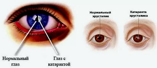 катаракта - симптомы