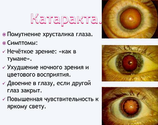 симптомы помутнения хрусталика - катаракты