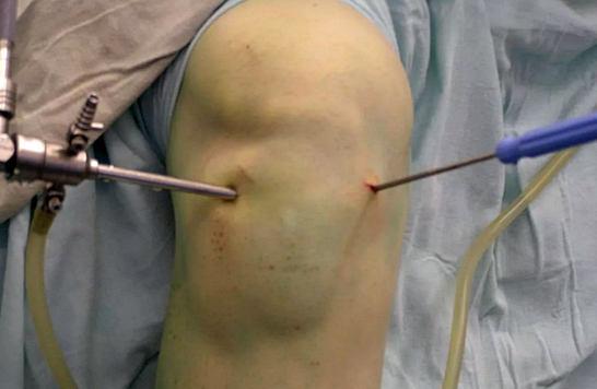 артроскопия - операция на коленном суставе