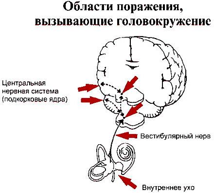 головокружение при вертиго