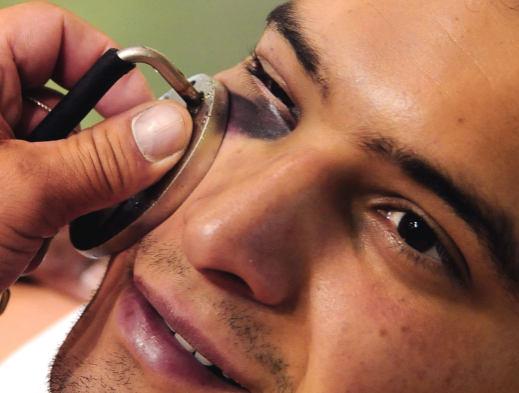 Как быстро убрать синяк под глазом - лечение гематомы