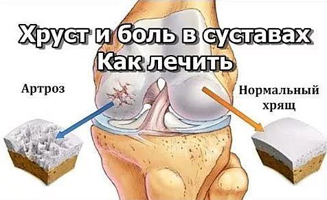 лечение хруста в суставах