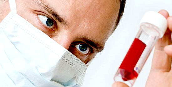 лечение повышенного уровня мочевой кислоты