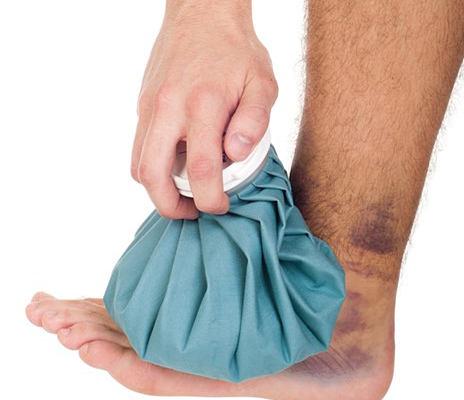первая помощь и лечение растяжения связок голеностопа
