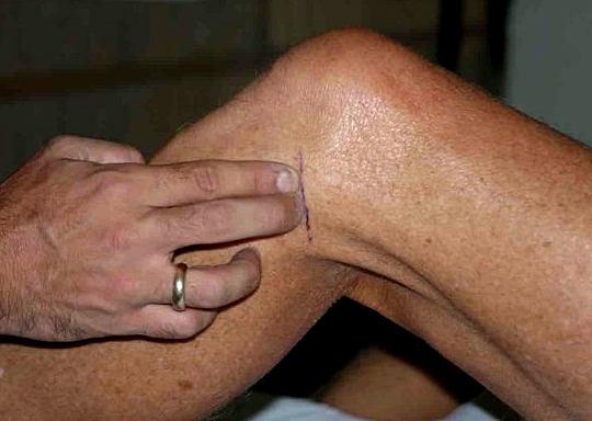 разрыв мениска коленного сустава - симптомы и лечение