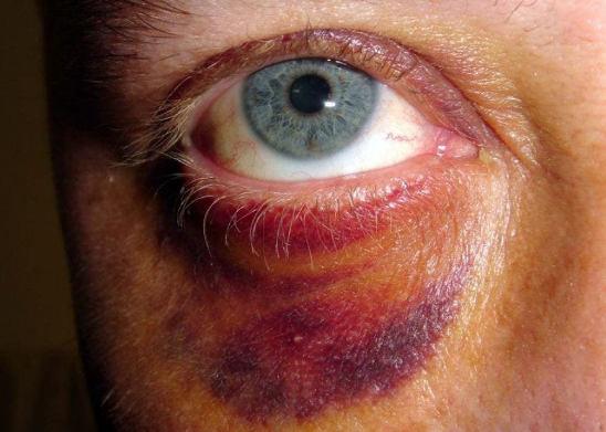 Как и чем быстро вылечить синяк под глазом от удара: лечение в домашних условиях