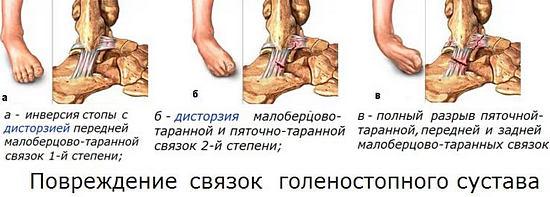 виды повреждения связок