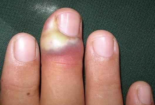 Воспалился на пальце заусенец - причины, симптомы, чем лечить