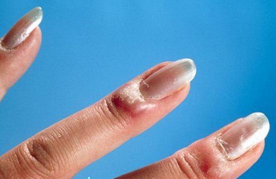 воспалился заусенец на пальце что делать